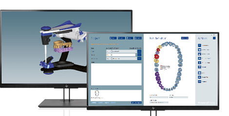 Two screens showing the dental CAD software Ceramill Mind